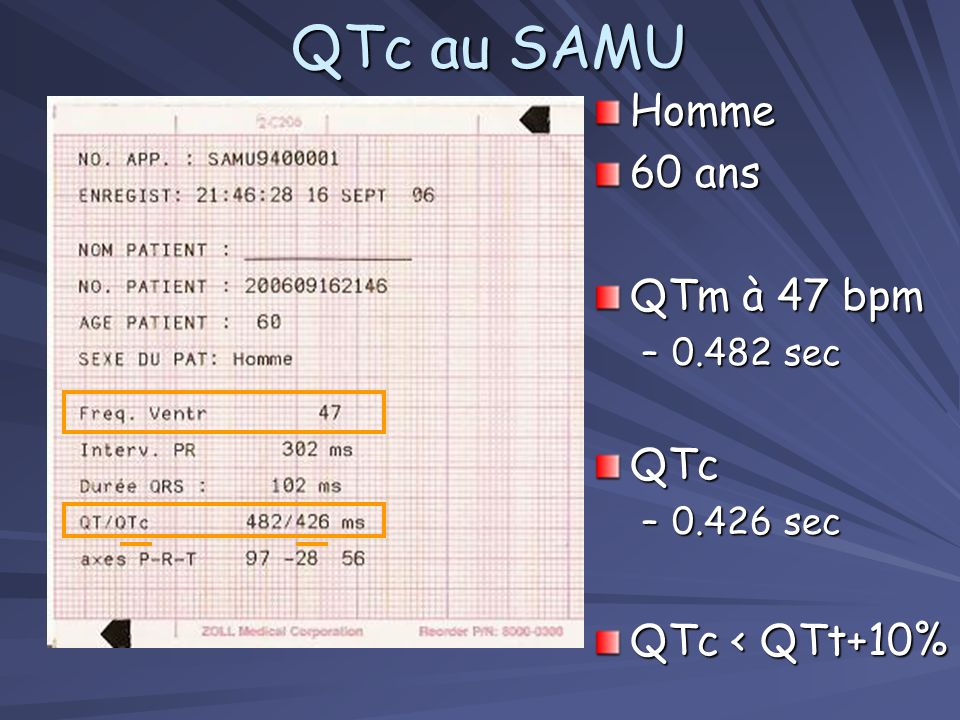 QTc au SAMU Homme 60 ans QTm à 47 bpm QTc QTc < QTt+10% 0.482 sec