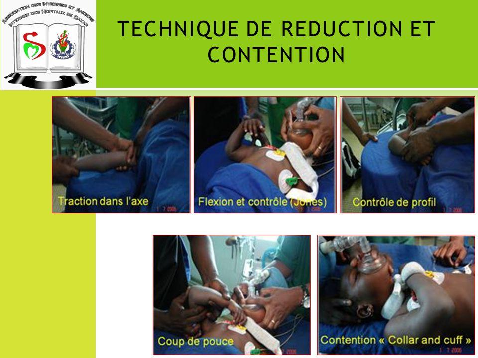 TECHNIQUE DE REDUCTION ET CONTENTION