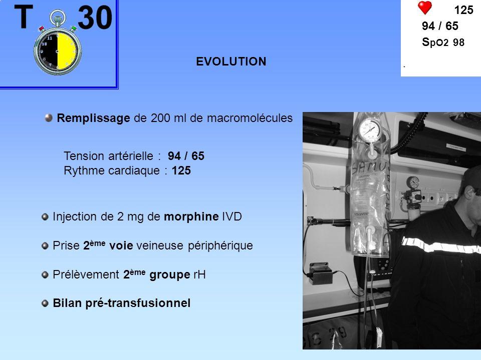 125 94 / 65. SpO2 98. EVOLUTION. Remplissage de 200 ml de macromolécules. Tension artérielle : 94 / 65.