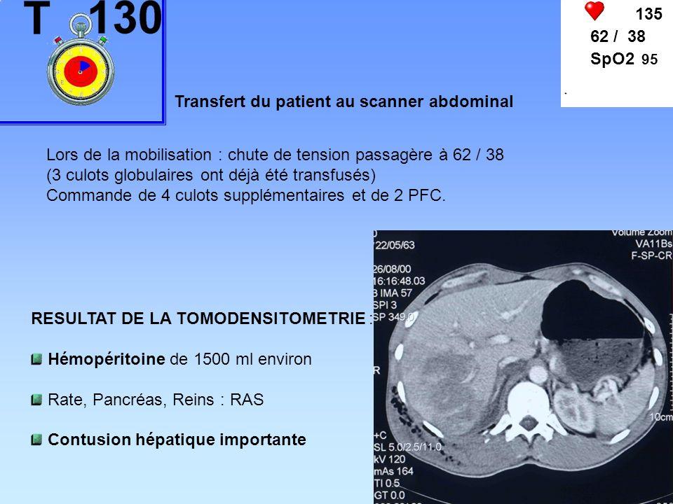 135 62 / 38. SpO2 95. Transfert du patient au scanner abdominal. Lors de la mobilisation : chute de tension passagère à 62 / 38.