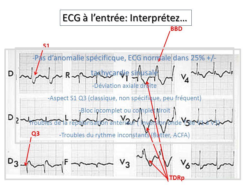 ECG à l'entrée: Interprétez…