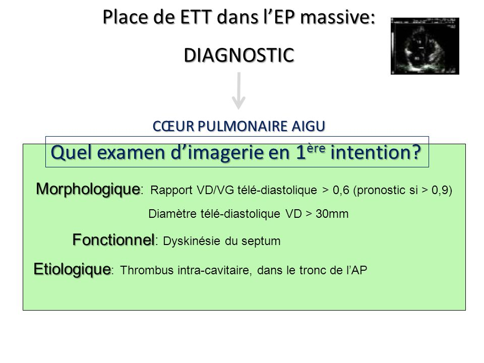 Place de ETT dans l'EP massive: DIAGNOSTIC