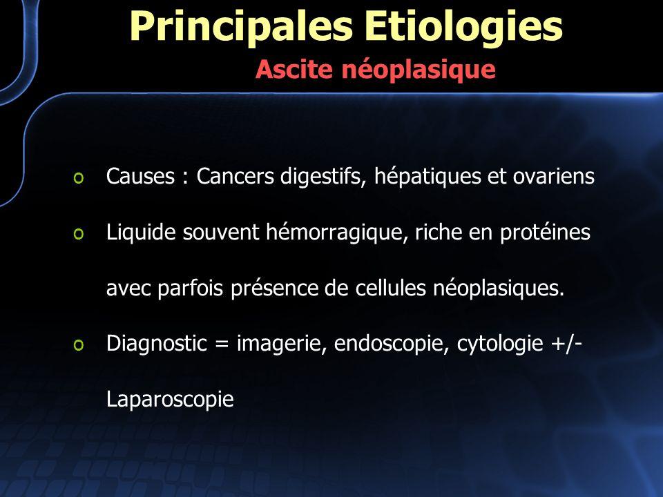 Principales Etiologies Ascite néoplasique