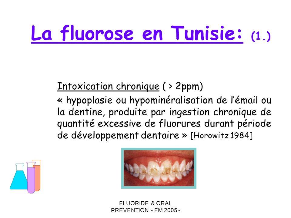 La fluorose en Tunisie: (1.)