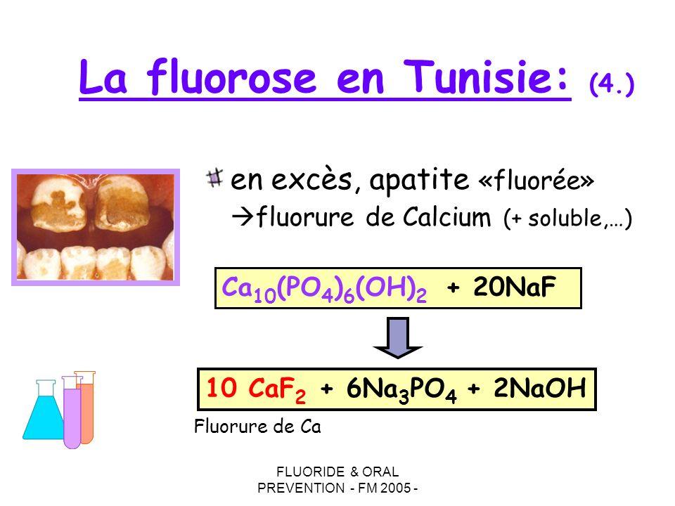 La fluorose en Tunisie: (4.)