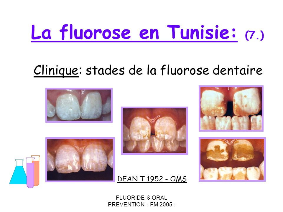 La fluorose en Tunisie: (7.)