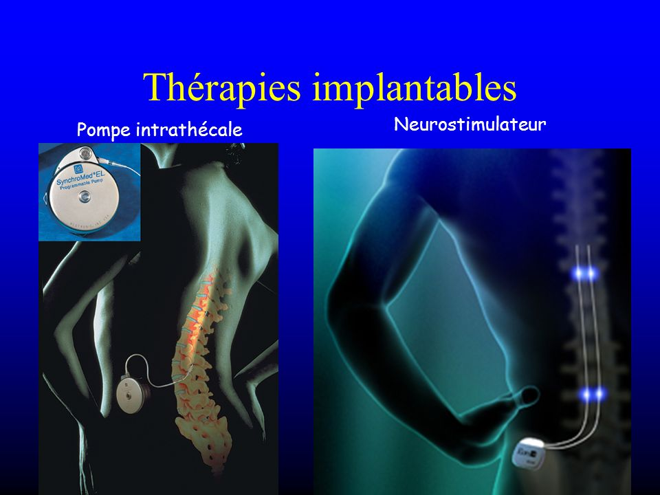 Thérapies implantables