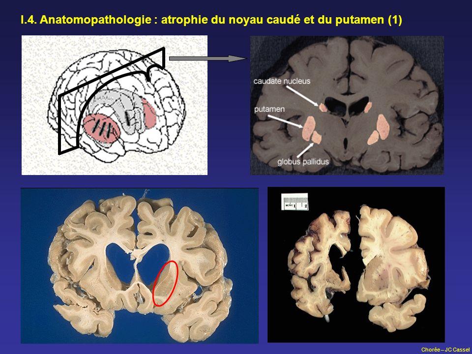 I.4. Anatomopathologie : atrophie du noyau caudé et du putamen (1)