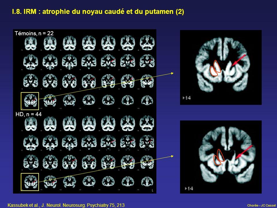 I.8. IRM : atrophie du noyau caudé et du putamen (2)