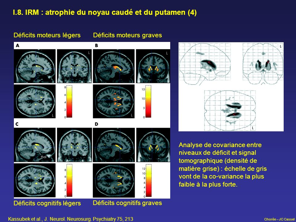 I.8. IRM : atrophie du noyau caudé et du putamen (4)