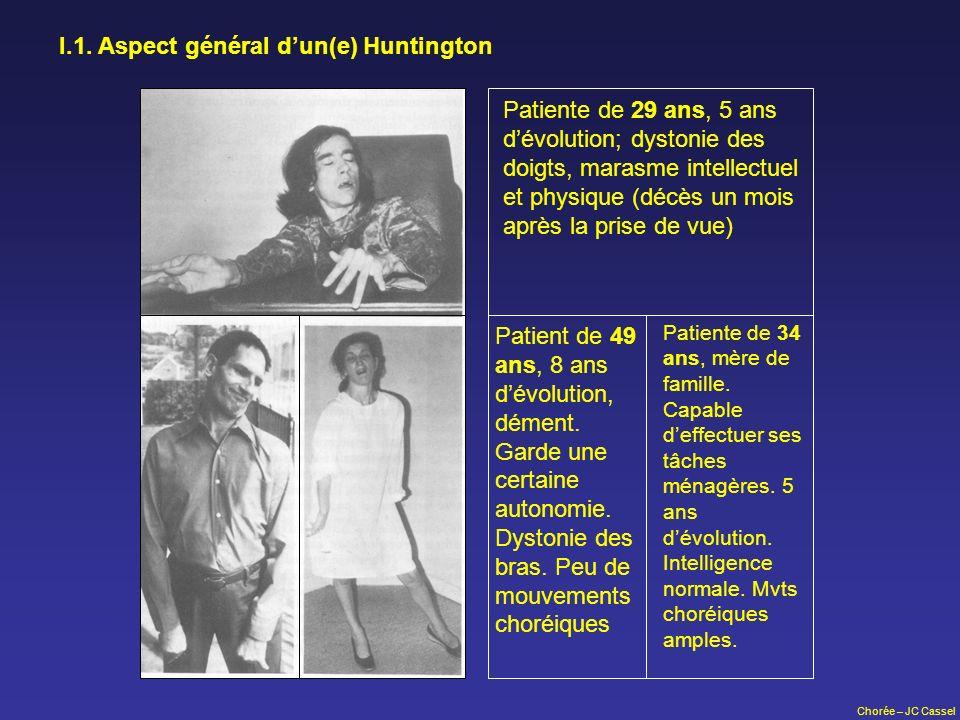I.1. Aspect général d'un(e) Huntington