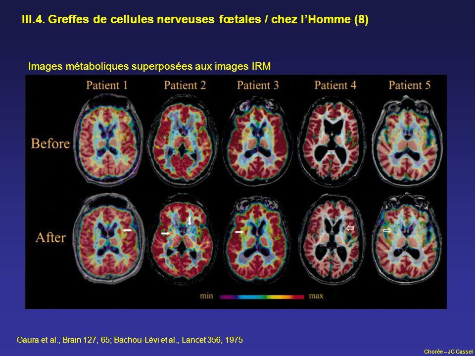 III.4. Greffes de cellules nerveuses fœtales / chez l'Homme (8)