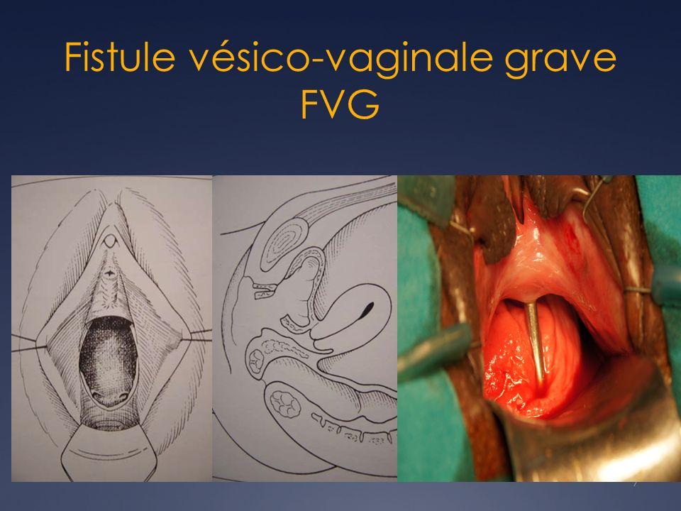 Fistule vésico-vaginale grave FVG