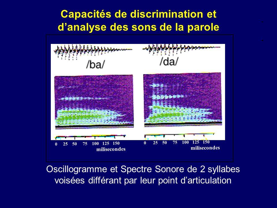 Capacités de discrimination et d'analyse des sons de la parole