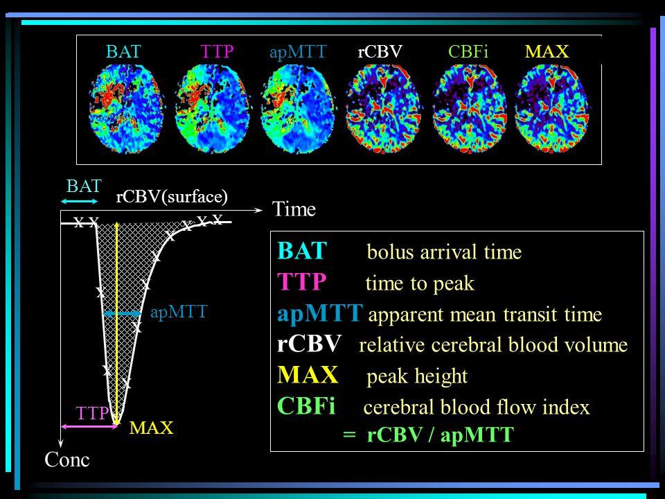 apMTT apparent mean transit time rCBV relative cerebral blood volume