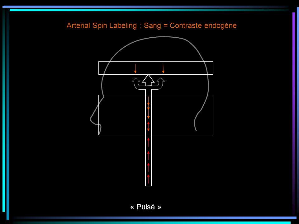 Arterial Spin Labeling : Sang = Contraste endogène