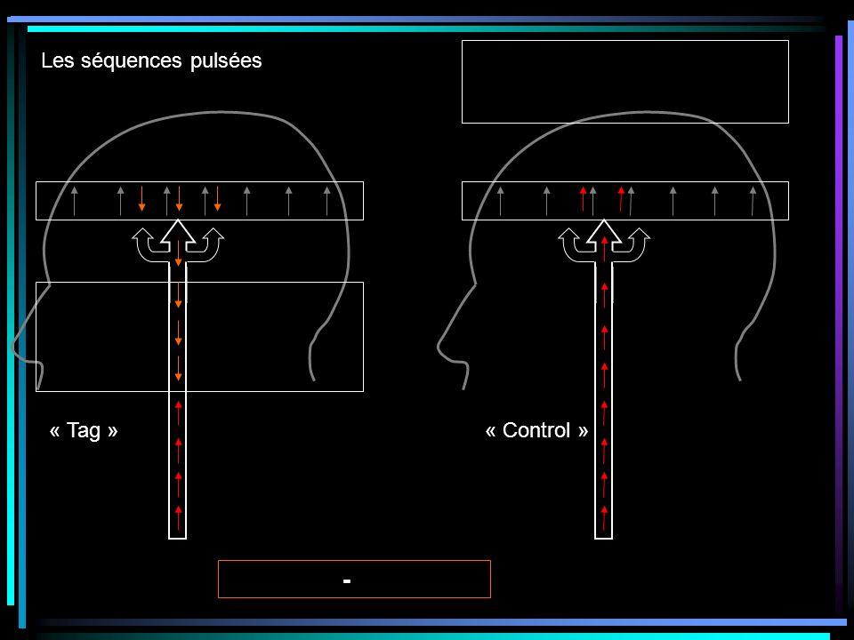 Les séquences pulsées « Tag » « Control »