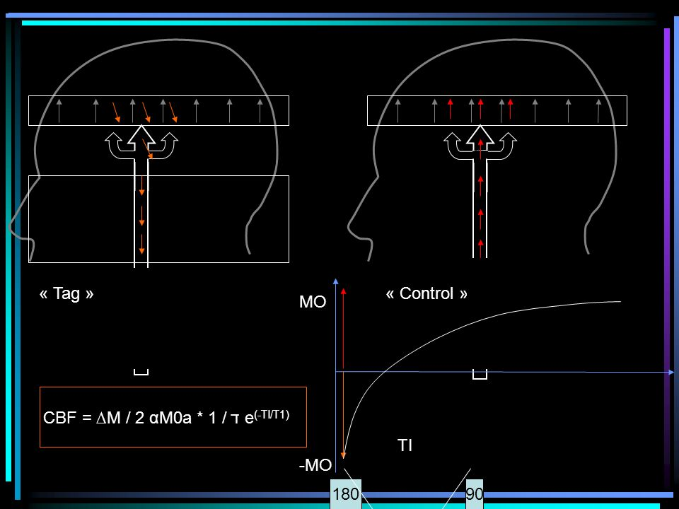 « Tag » « Control » MO -MO CBF = ∆M / 2 αM0a * 1 / ד e(-TI/T1) TI 180 90