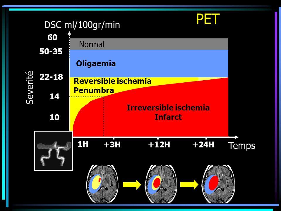 Irreversible ischemia
