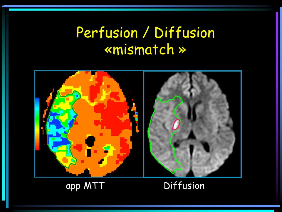 Perfusion / Diffusion «mismatch »