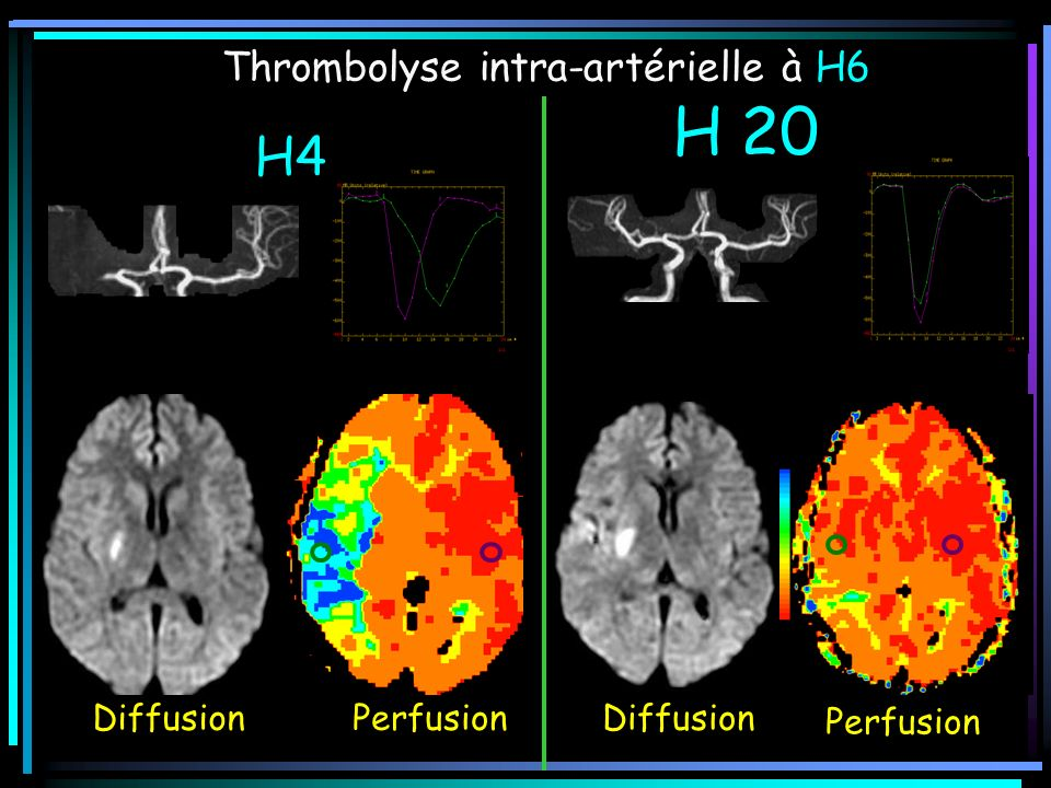 H 20 H4 Thrombolyse intra-artérielle à H6 Diffusion Perfusion