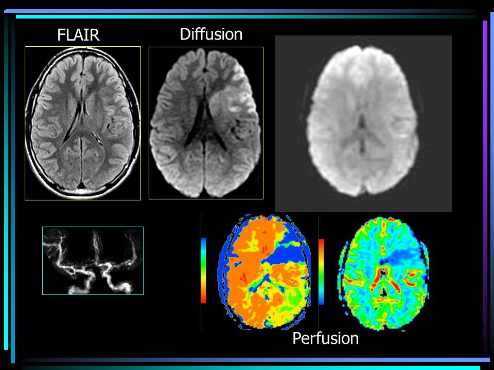FLAIR Diffusion Perfusion