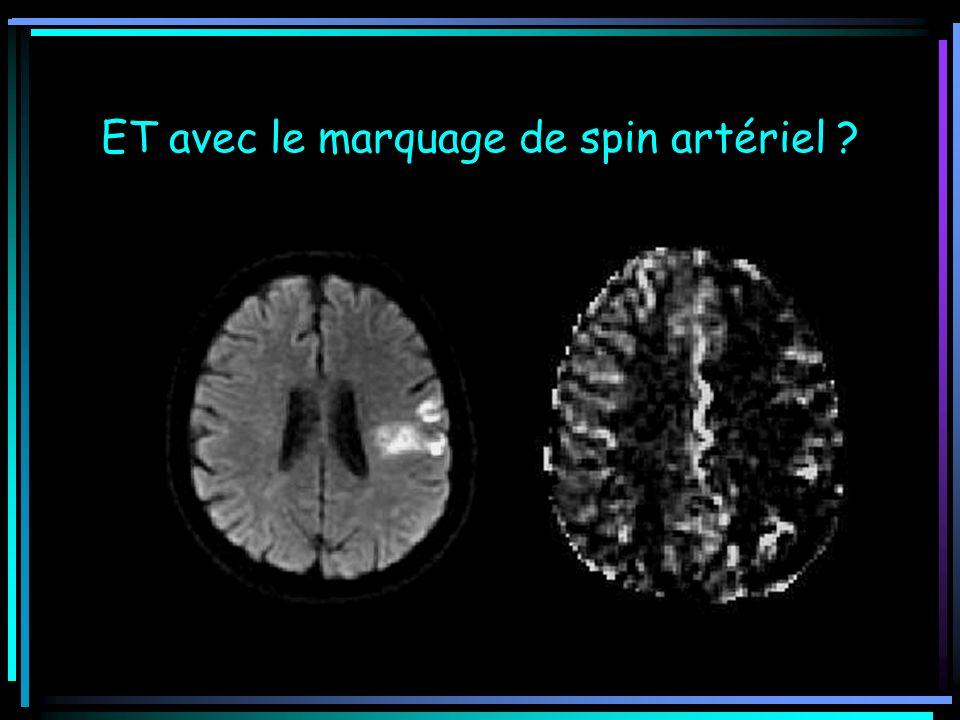 ET avec le marquage de spin artériel