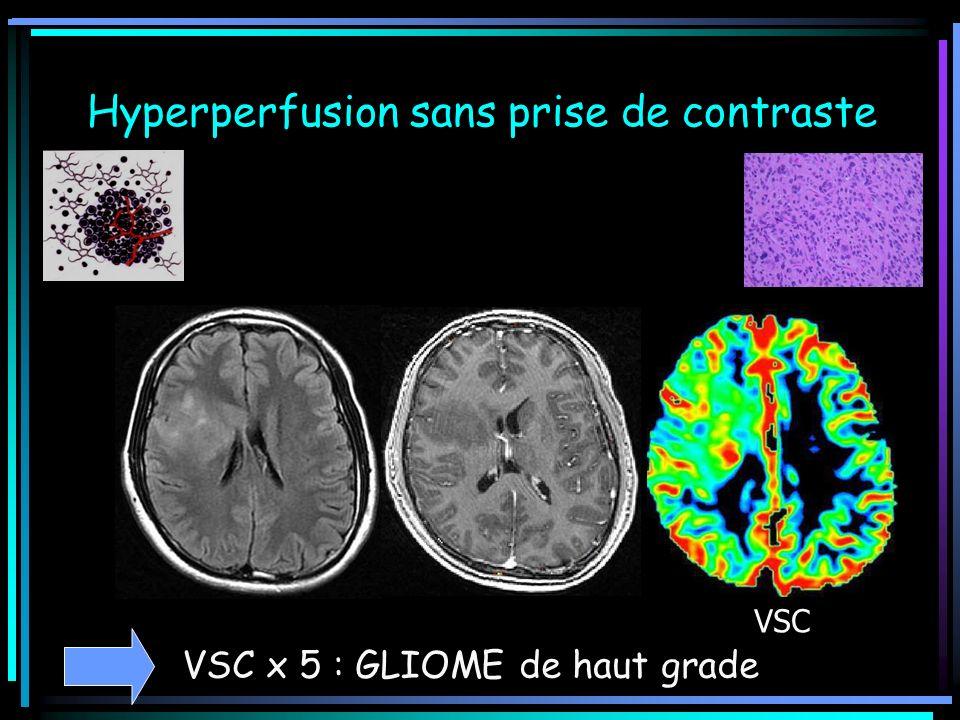 Hyperperfusion sans prise de contraste