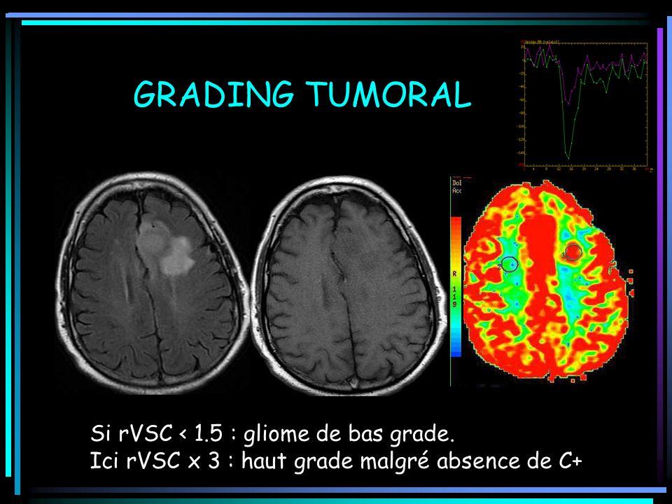 GRADING TUMORAL Si rVSC < 1.5 : gliome de bas grade.