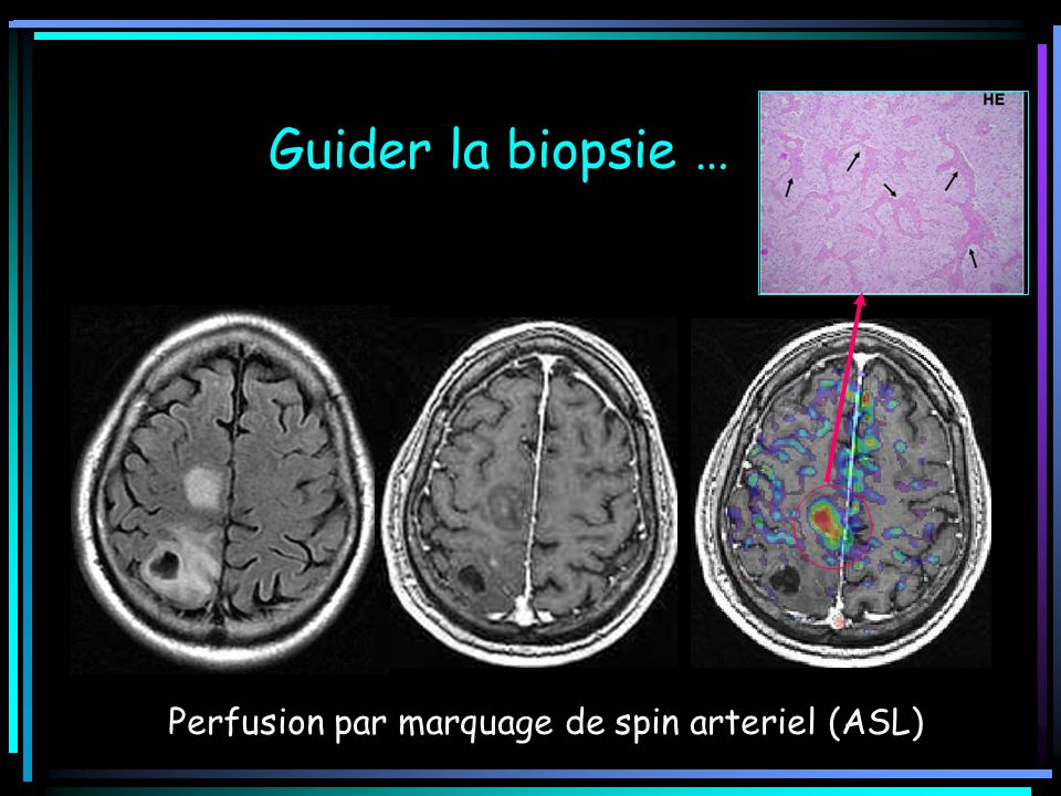 Guider la biopsie … Perfusion par marquage de spin arteriel (ASL)
