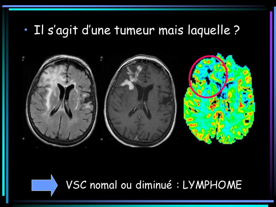 Il s'agit d'une tumeur mais laquelle