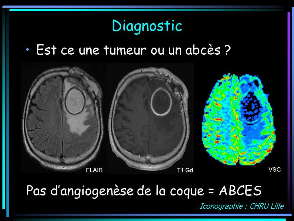 Diagnostic Est ce une tumeur ou un abcès