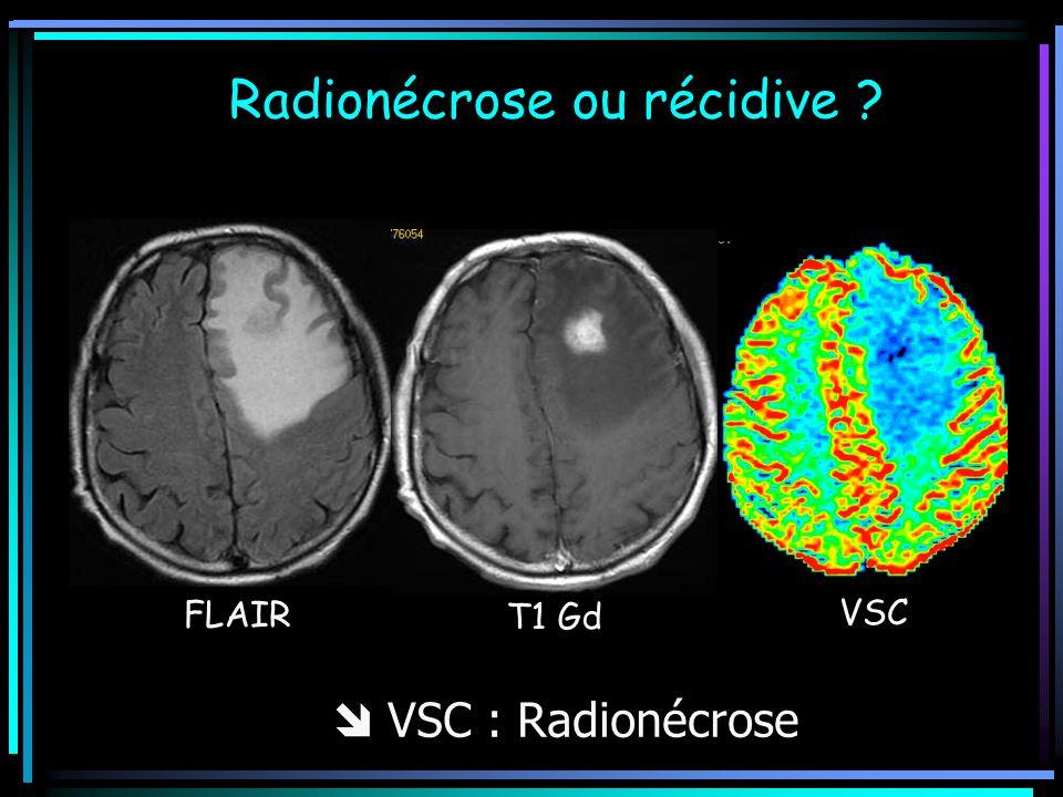 Radionécrose ou récidive