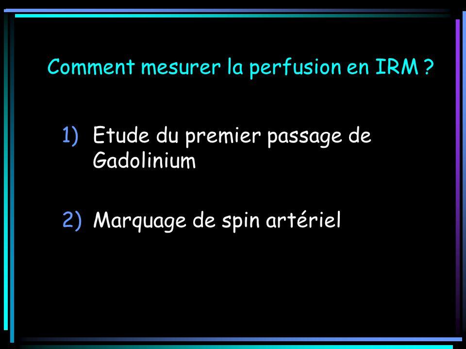 Comment mesurer la perfusion en IRM