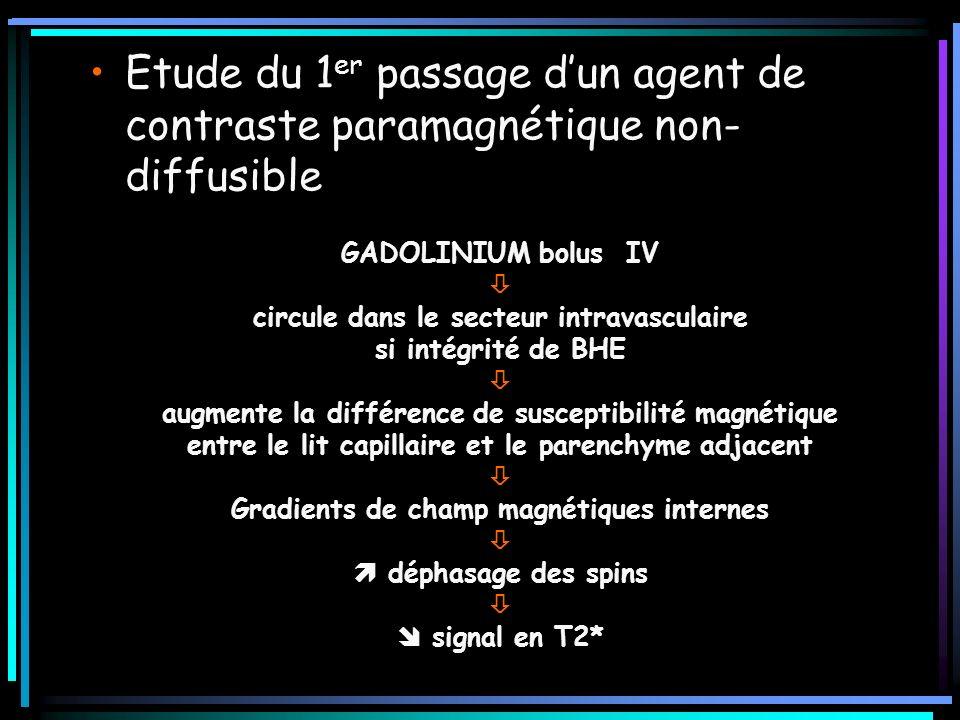 Etude du 1er passage d'un agent de contraste paramagnétique non-diffusible