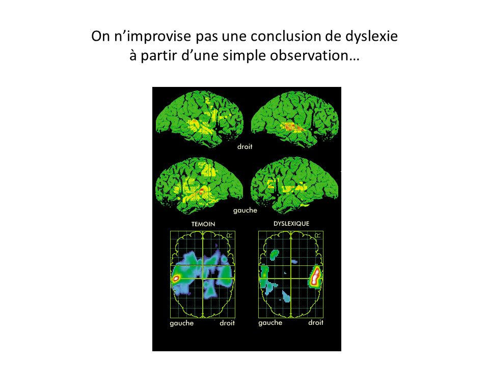 On n'improvise pas une conclusion de dyslexie à partir d'une simple observation…