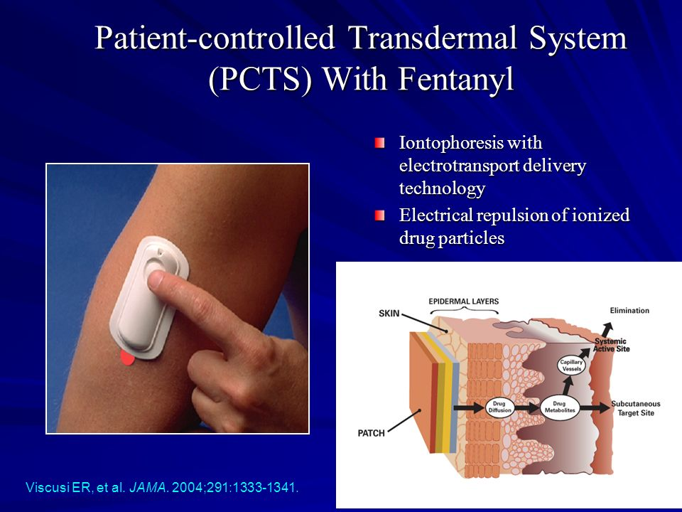 Patient-controlled Transdermal System (PCTS) With Fentanyl