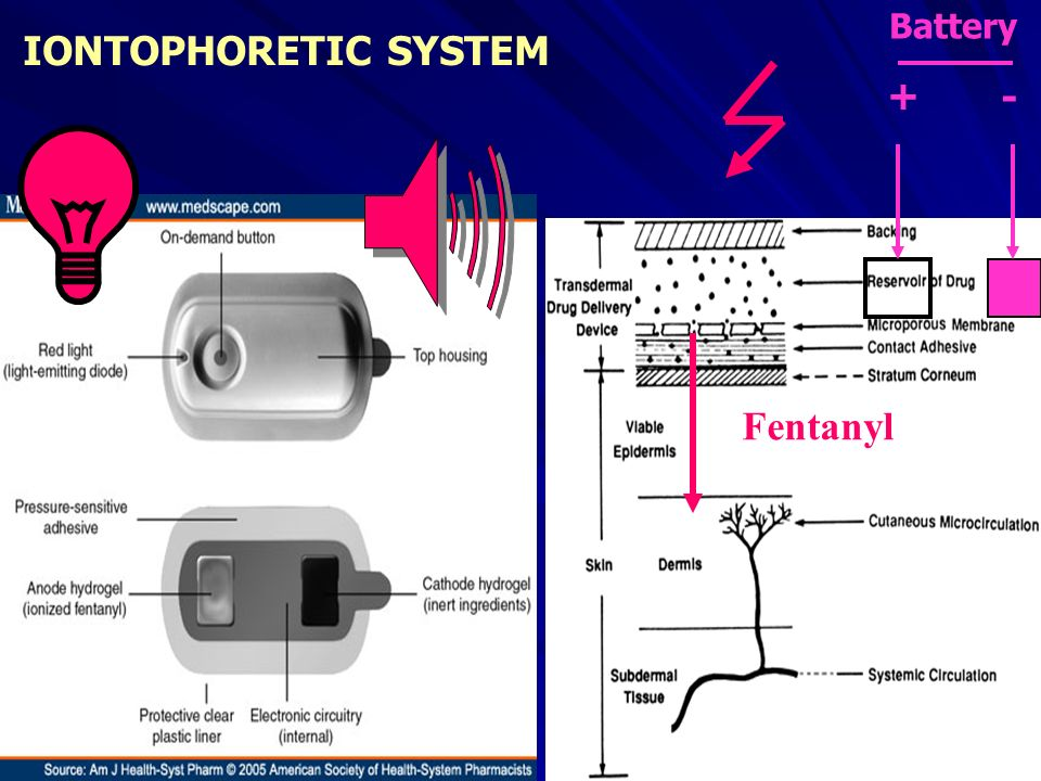 Battery IONTOPHORETIC SYSTEM + - Fentanyl