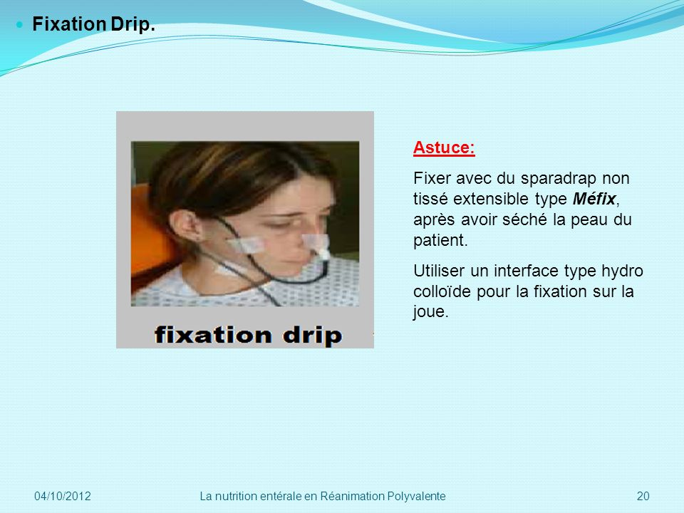 Fixation Drip. Astuce: Fixer avec du sparadrap non tissé extensible type Méfix, après avoir séché la peau du patient.
