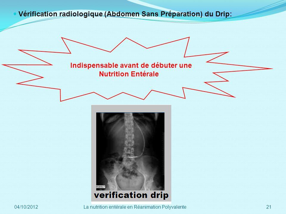 Vérification radiologique (Abdomen Sans Préparation) du Drip: