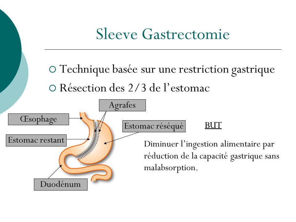 Sleeve Gastrectomie Technique basée sur une restriction gastrique