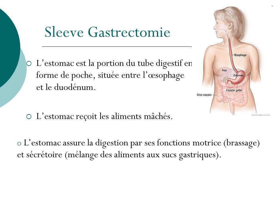 Sleeve Gastrectomie L'estomac est la portion du tube digestif en forme de poche, située entre l'œsophage et le duodénum.