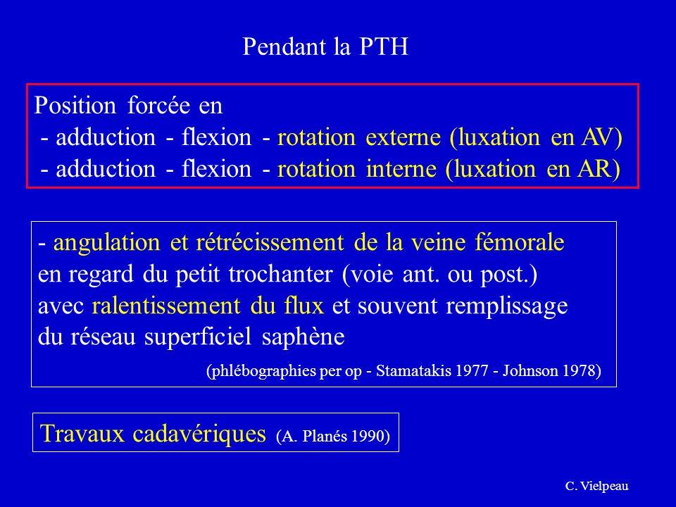 - adduction - flexion - rotation externe (luxation en AV)