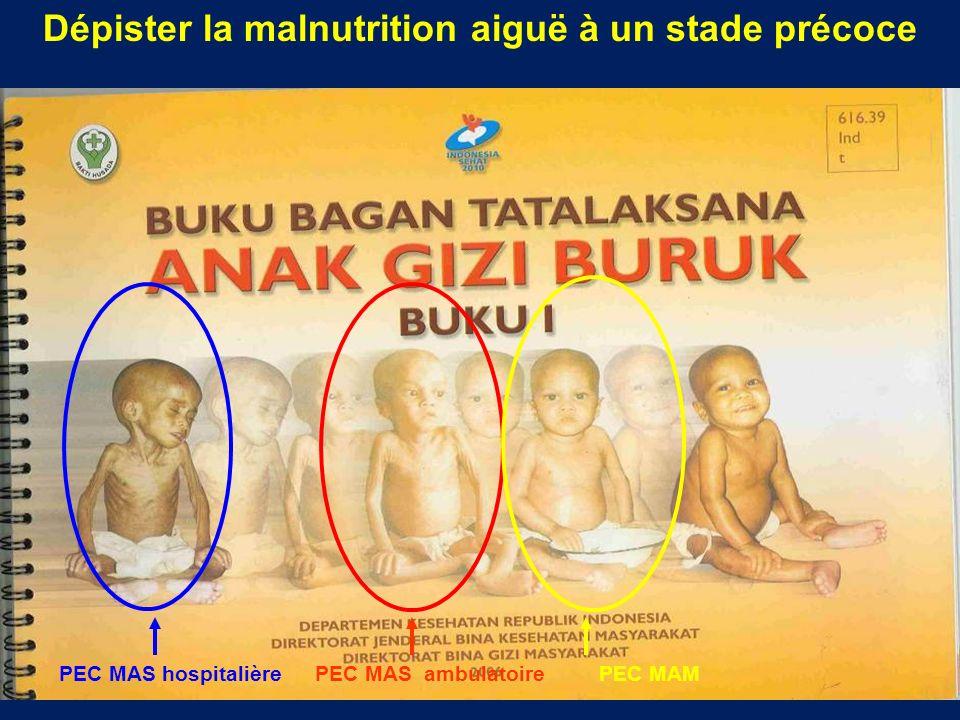 Dépister la malnutrition aiguë à un stade précoce