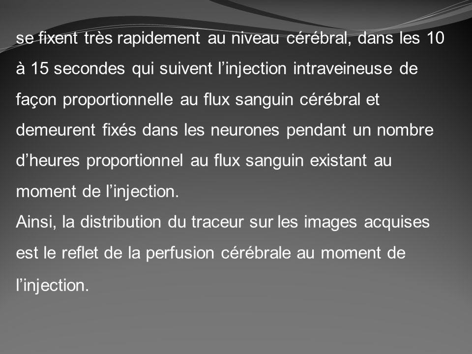 se fixent très rapidement au niveau cérébral, dans les 10 à 15 secondes qui suivent l'injection intraveineuse de façon proportionnelle au flux sanguin cérébral et demeurent fixés dans les neurones pendant un nombre d'heures proportionnel au flux sanguin existant au moment de l'injection.