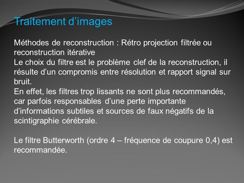 Traitement d'images Méthodes de reconstruction : Rétro projection filtrée ou reconstruction itérative.