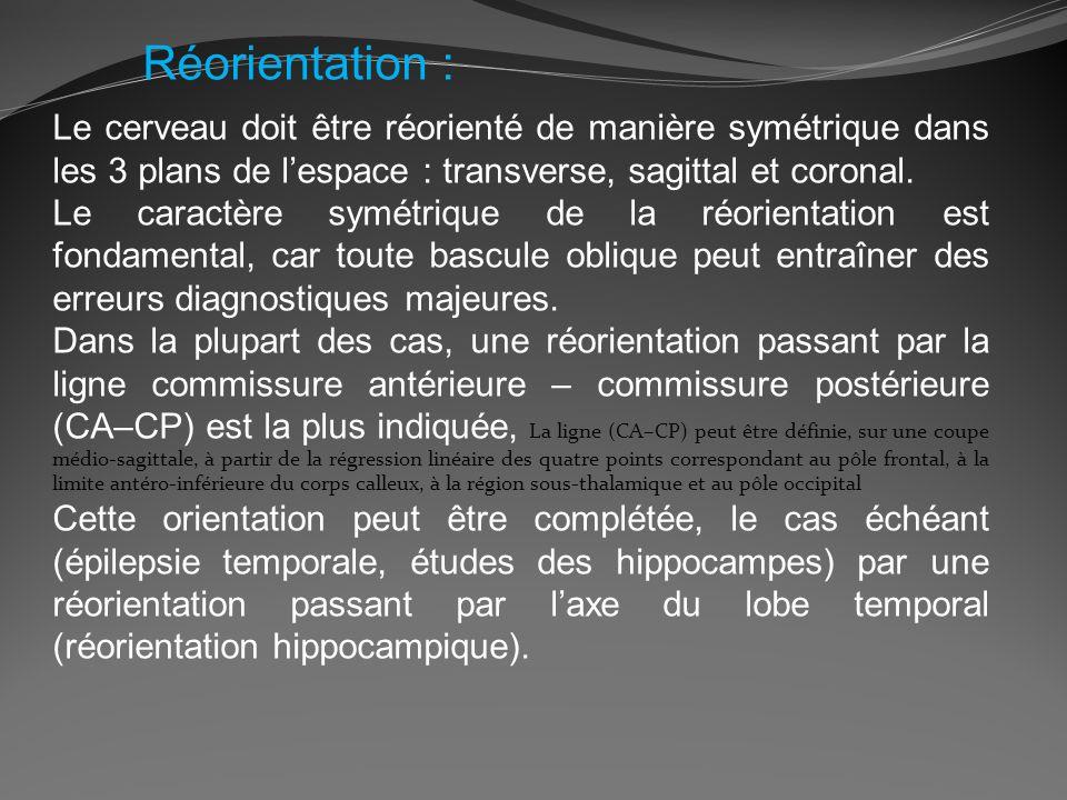Réorientation : Le cerveau doit être réorienté de manière symétrique dans les 3 plans de l'espace : transverse, sagittal et coronal.
