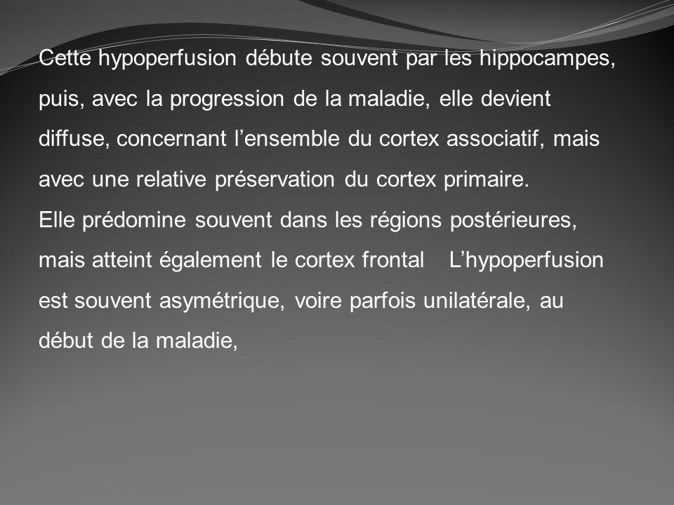 Cette hypoperfusion débute souvent par les hippocampes, puis, avec la progression de la maladie, elle devient diffuse, concernant l'ensemble du cortex associatif, mais avec une relative préservation du cortex primaire.