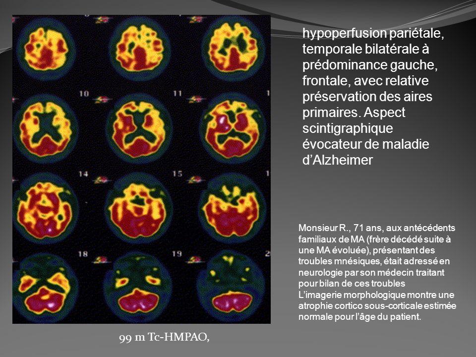 hypoperfusion pariétale, temporale bilatérale à prédominance gauche, frontale, avec relative préservation des aires primaires. Aspect scintigraphique évocateur de maladie d'Alzheimer