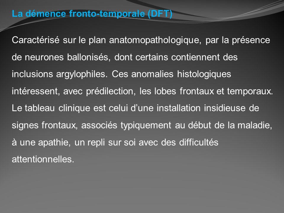 La démence fronto-temporale (DFT)